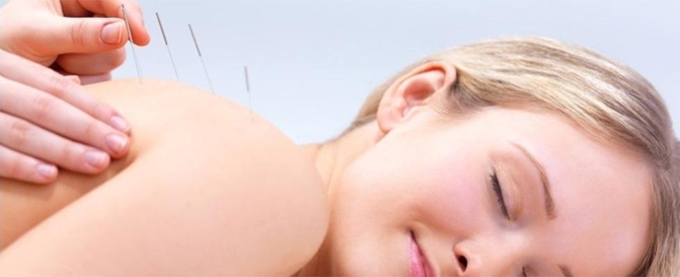 Trattamento dell'insonnia con agopuntura
